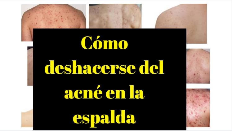 Cómo deshacerse del acné en la espalda