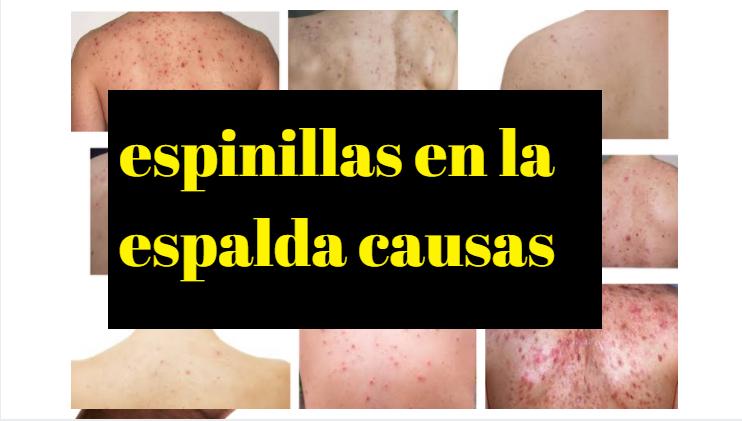 CAUSAS DE ACNÉ EN LA ESPALDA Y CONSEJOS PARA CONTROLAR LA ESPINILLA Y LAS ESPINILLAS DEL ACNÉ