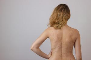 Cuentas en la espalda Hombres Consejos para reducir su acné