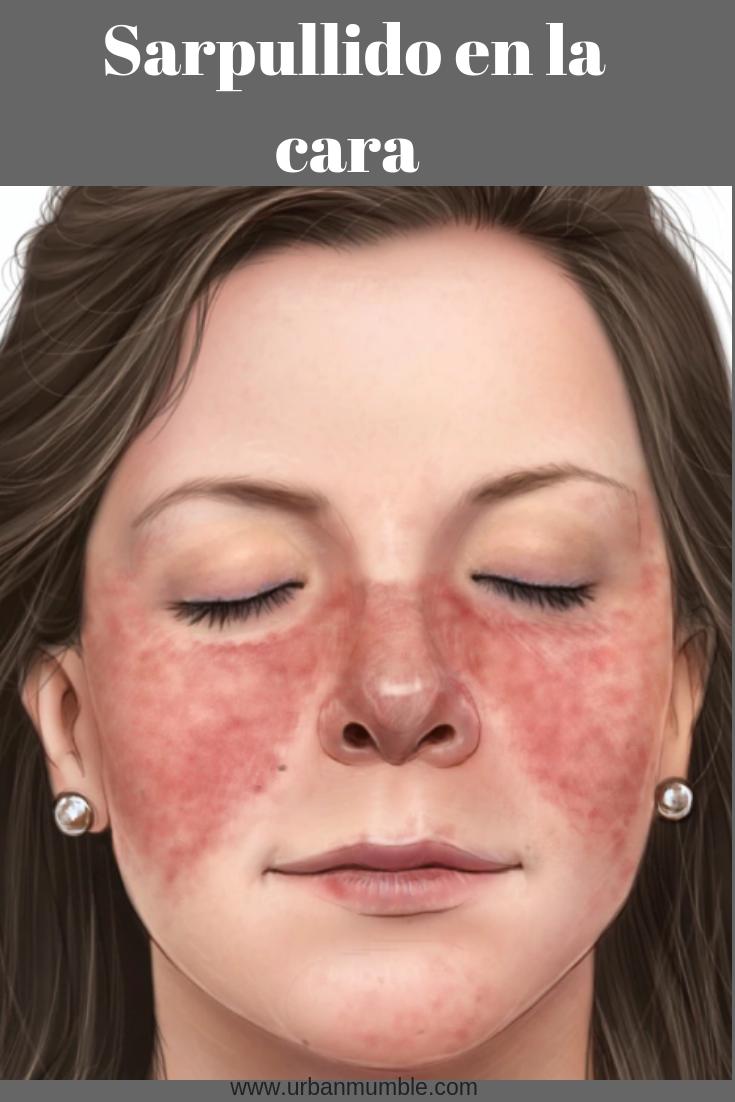 Sarpullido en la cara