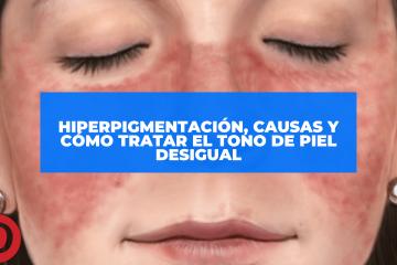 Hiperpigmentación, causas y cómo tratar el tono de piel desigual